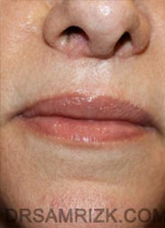 photo Female after Lip Lift