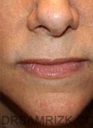 photo Female before Lip Lift