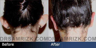 before and after ear surgery - back view