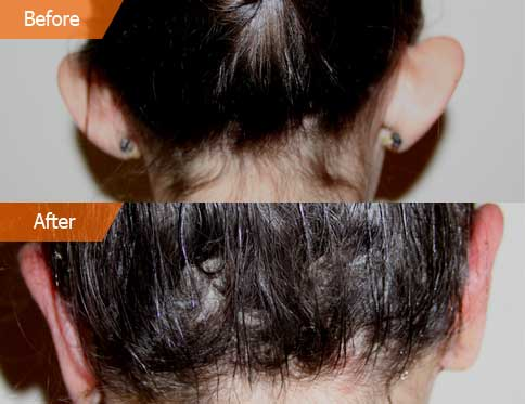 before and after Otoplasty - back view