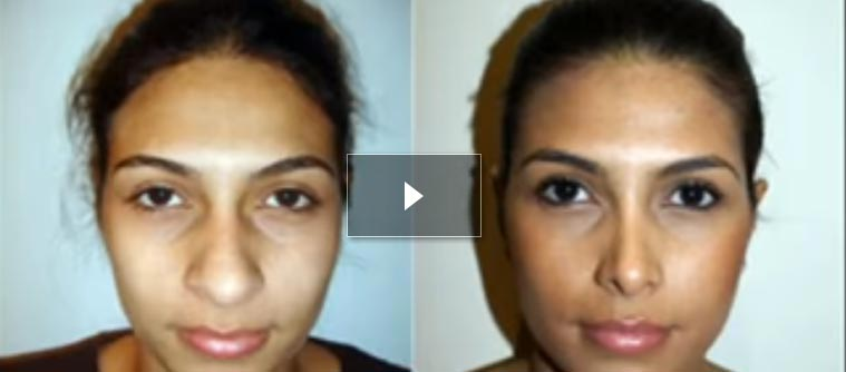 preview video - Rhinoplasty Before and After