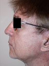 Photo Gallery: Facelift - After Treatment, 75 year old male (left side view)