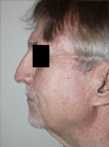 Photo Gallery: Facelift - Before Treatment, 75 year old male (left side view)