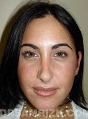 image Female after Nose Surgery