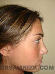 photo Female patient after Nose Surgery