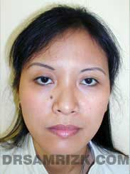 Female patient before Nose Surgery