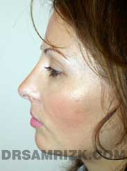 Female patient after Nose Surgery