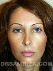 Female patient after Nose Job - photo