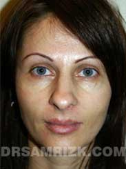 Female patient before Nose Job - image