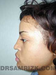 pic Female before Nose Surgery