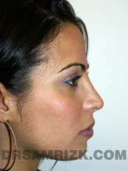 Female after Nose Surgery
