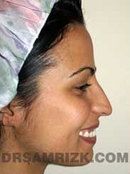 Female before Nose Surgery