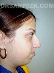 NYC Rhinoplasty Female before pic