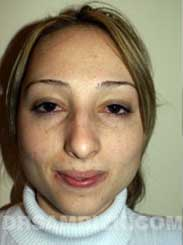 Female before nose surgery - front view