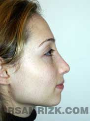 before Nose Job women image