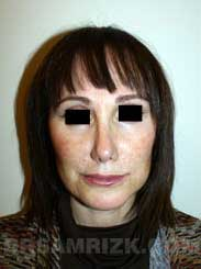 picture Female patient after Nose Job