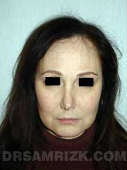 picture Female patient before Nose Job