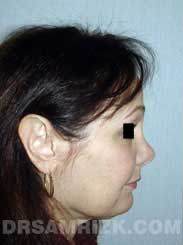 Female before nose job - side view