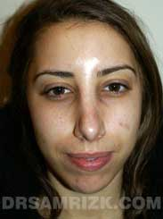 Female patient Post-Op rhinoplasty - front view