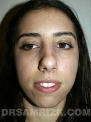 Female patient Pre-Op rhinoplasty - front view