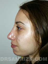 Female patient after rhinoplasty - pic