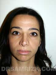 Female patient before rhinoplasty - photo