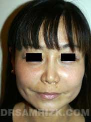 photo Female after Rhinoplasty