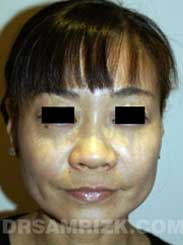 photo patient before Nose Surgery