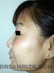 image Female after Rhinoplasty