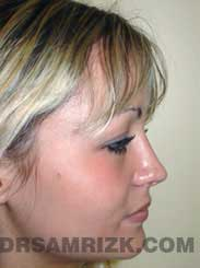 pic Female Postoperative Nose Surgery