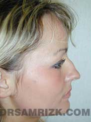 picture Female Pre-Op Nose Surgery