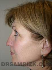 Female patient Pre-Op rhinoplasty - side view