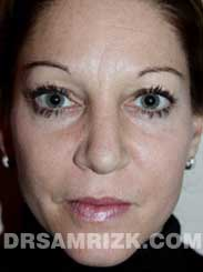 Female after rhinoplasty - photo