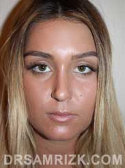 photo Female after reconstructive rhinoplasty