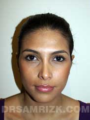 Female patient Post-Op rhinoplasty - photo