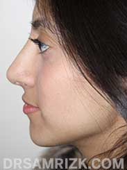 photo female after rhinoplasty - side view