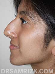 Female patient befor Nose Surgery - image