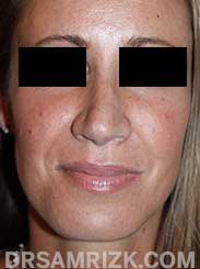 Female patient after Nose Surgery - pic