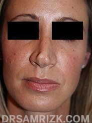 photo Female patient before Nose Surgery
