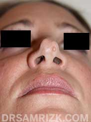 Female Pre-Op rhinoplasty - photo