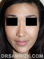 photo Asian Female patient after Rhinoplasty