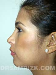 photo Latino female after rhinoplasty - front view