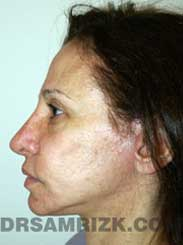 photo female patient after rhinoplasty