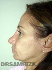 photo female patient before rhinoplasty