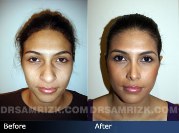 Female ethnic rhinoplasty before & after photos