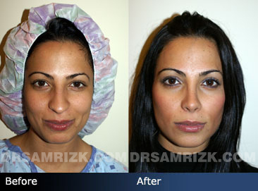 revision rhinoplasty before & after - images