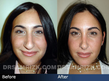 Female patient rhinoplasty before & after - images