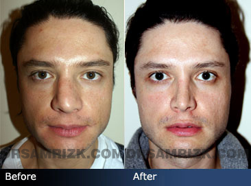 Male face, Before and After Rhinoplasty Treatment, nose, front view, patient 1