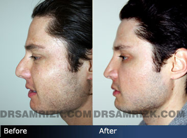 Male face, Before and After Rhinoplasty Treatment, nose, left side view, patient 1