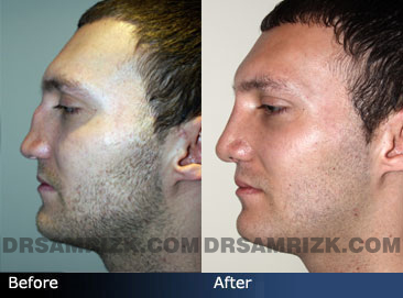 pics Male patient before and after rhinoplasty